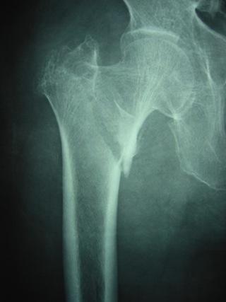 大腿骨転子部骨折